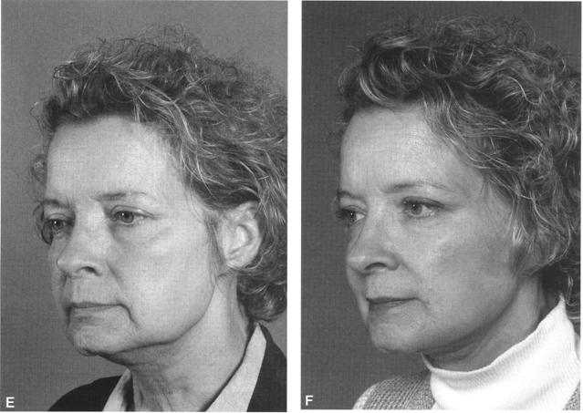 Before and after patient pictures