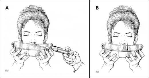 Nasal cleansing