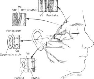 The depth of the temporal branch of the facial nerve at different locations in its course
