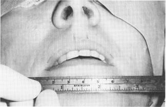 Woman's mouth and ruler during surgery