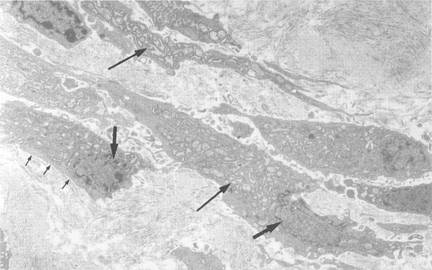 Electron microscopic examination of the myofibroblast