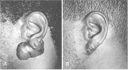 Large ear lobule keloid secondary to ear piercing