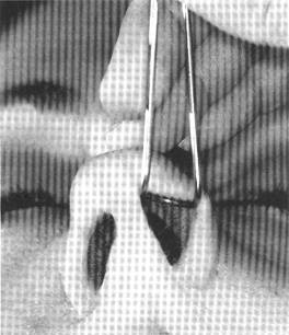 The nasal valve retractor
