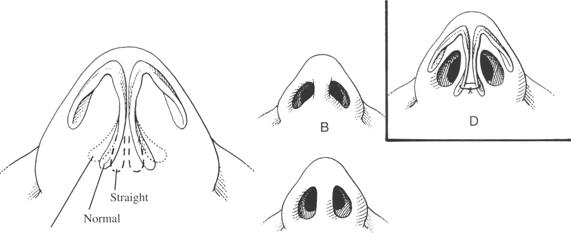 Illustration of nose surgery