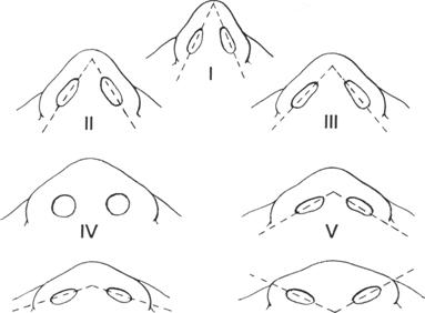 Illustration of nose