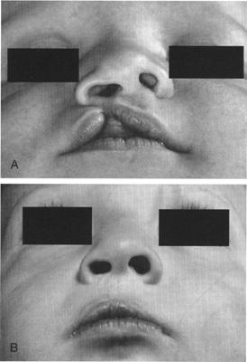 Before and after cleft lip repair