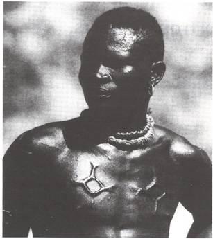 Hypertrophic scar of a Nuba man
