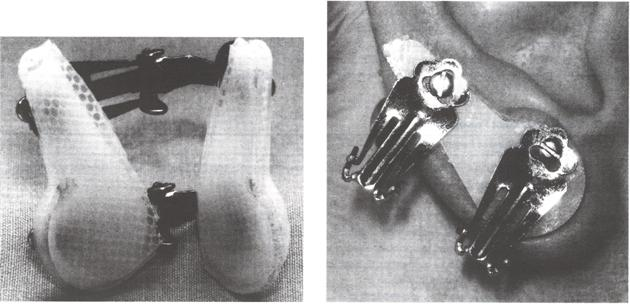 (A) Custom ear press with silicone gel sheeting. (B) Custom ear press with silicone gel sheeting, in situ.