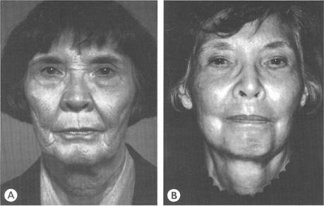 Before and after full-face ultrapulse carbon dioxide laser resurfacing