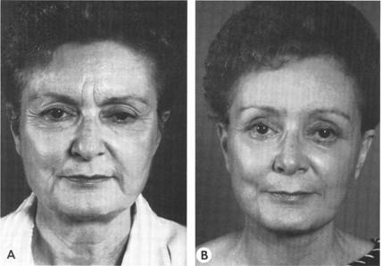 Before and after endoscopic brow-lift